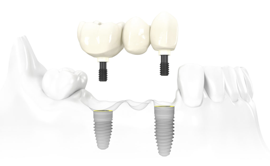 3_unit_implant_bridge_nobelreplace