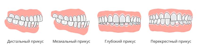 970_14505114
