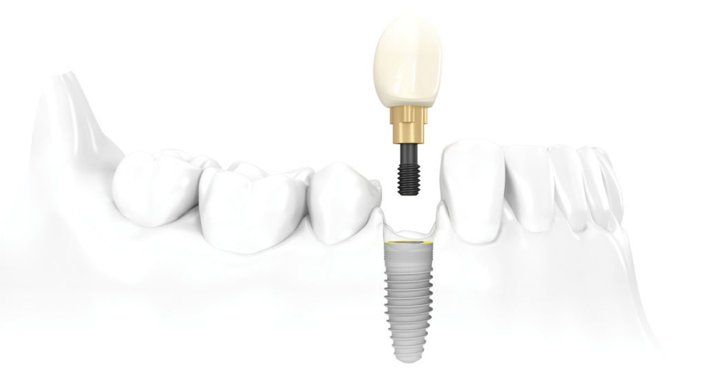 Dental implant - NobelBiocare
