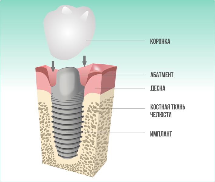 implant_2_koronka