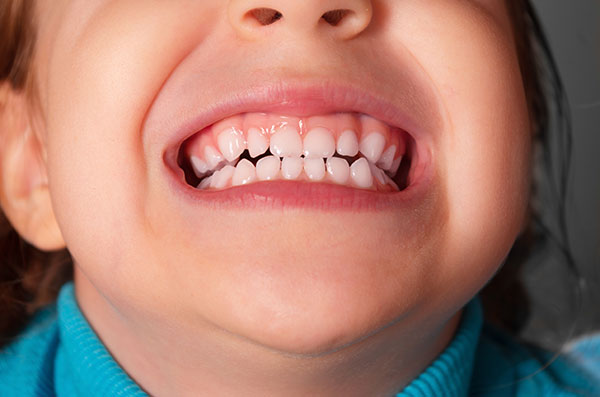 detskie_zubki